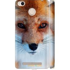 Чехол на Xiaomi Redmi 3x Рыжая лисица