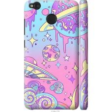 Чехол на Xiaomi Redmi 4X 'Розовый космос