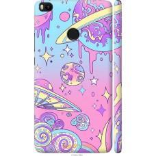 Чехол на Xiaomi Mi Max 2 'Розовый космос