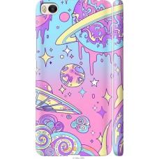 Чехол на Xiaomi Mi 5s 'Розовый космос
